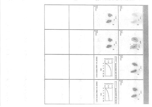 После операции лапораскопии Гидронефроза 3 ( динамическая сцистиграфия) - фото №1