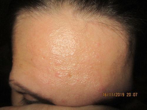 аллергия на лице - фото №1