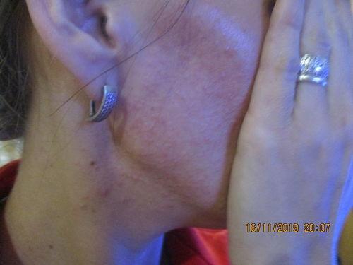 аллергия на лице - фото №2