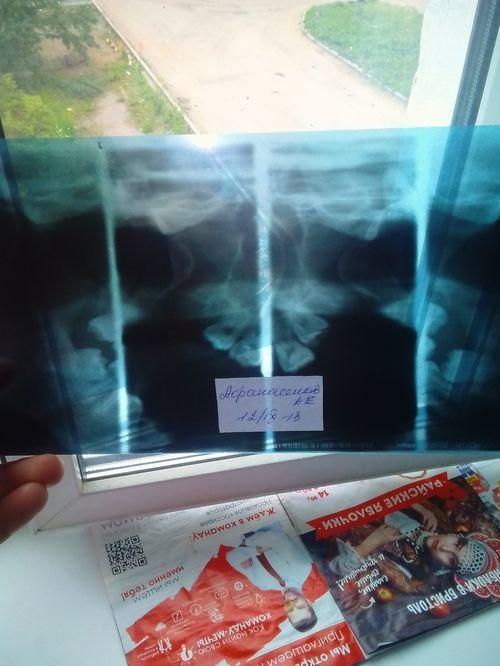 Ставили диагноз деформирующий артроз внчс - фото №4