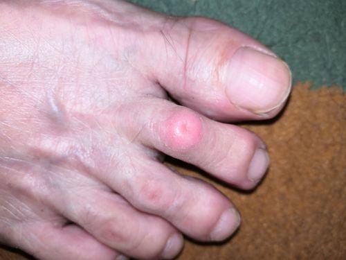 Мазоль на пальце ноги - фото №1