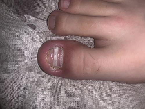 Болит палец - фото №1