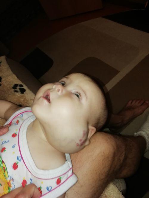 Ребёнок 6,5 месяцев, диагноз гемангиома - фото №4