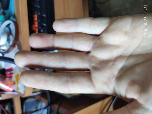 Повреждение сухожилия безымянного пальца руки - фото №5