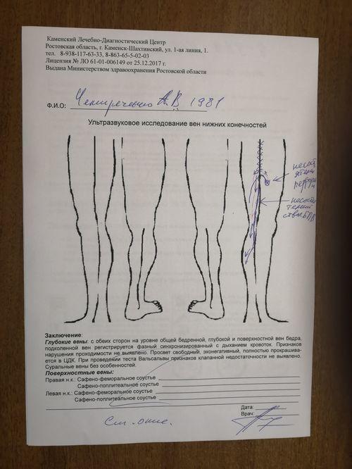 Склерозирование или ЭВЛК? - фото №2