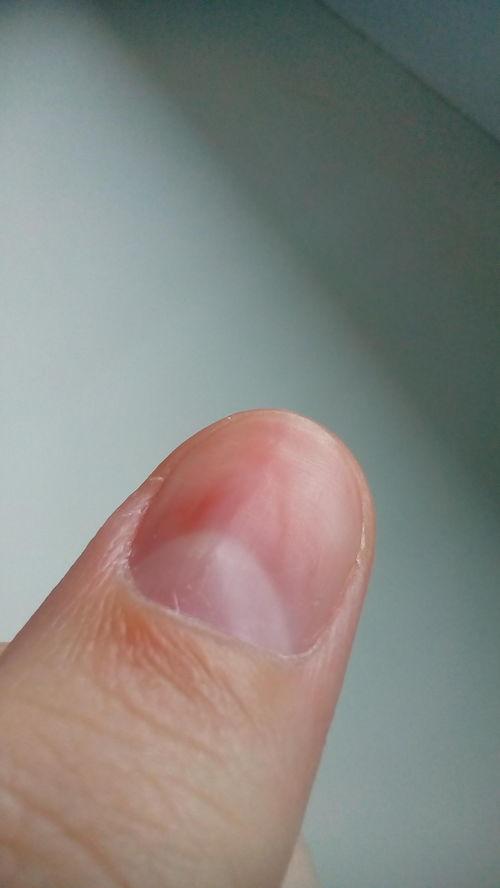 Отслойка ногтя от кожи у основания, у кутикулы - фото №1