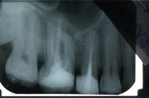Сколько можно тянуть с лечением 26-го зуба. Фото и снимок. - фото №1