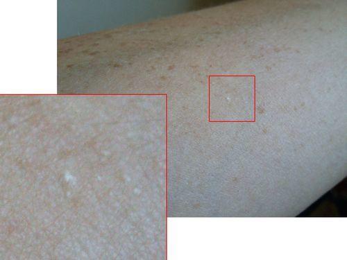 Малюсенькие чешущиеся белые точки на коже. Что это может быть? - фото №1