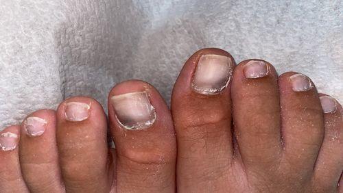 Потемнение ногтей после ковида - фото №1