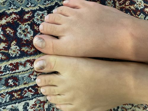 Потемнение ногтей после ковида - фото №2