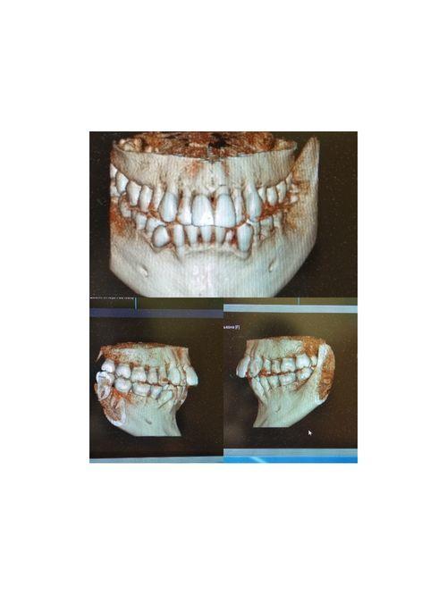 Установка брекетов без удаления зубов - фото №1