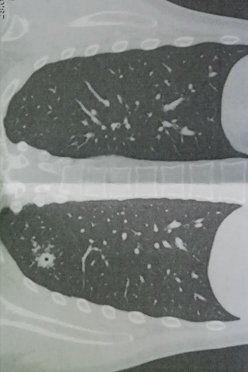 Может ли врач фтизиатр подтверждать туберкулёз на основе СКТ и двух ПЦР с обнаруженный КУМ - фото №1