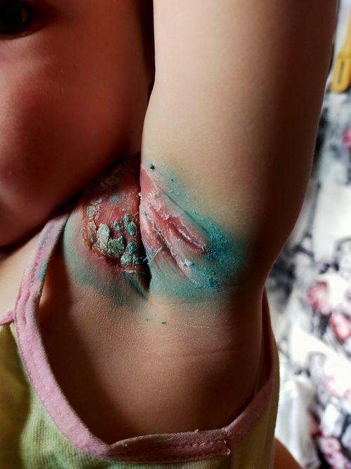 Раздражение у ребенка.может ли быть дерматит - фото №1