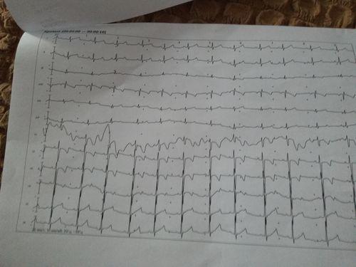 Сердце - фото №2