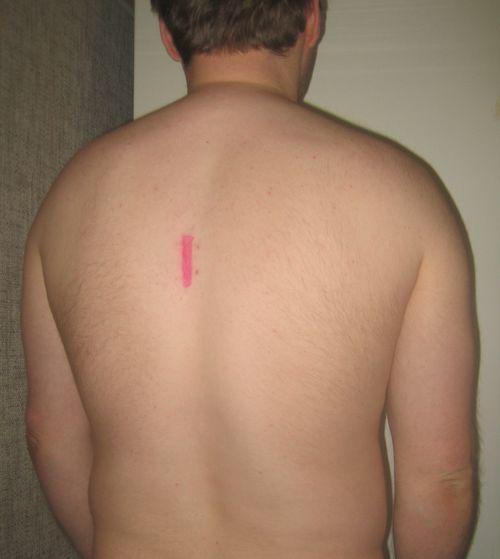 Более 8 лет постоянной боли в позвоночнике - фото №1