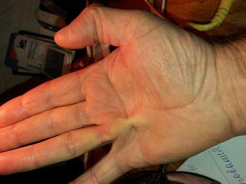 Не работает Безымянные пальцы. - фото №1