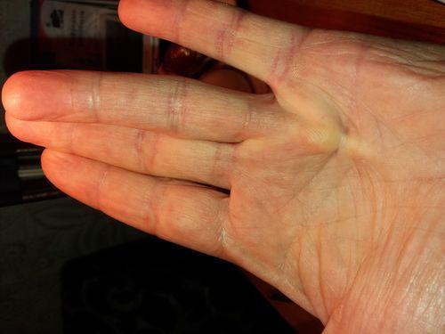 Не работает Безымянные пальцы. - фото №2