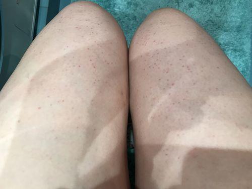 Красные пятнышки на ногах - фото №1