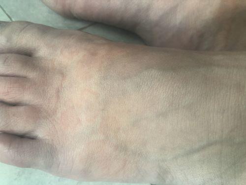 Пищевая аллергия , кожные высыпания - фото №1
