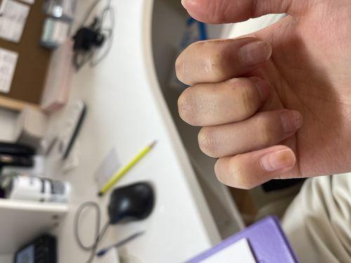 Добрый день, после снятия покрытия (гель лаком) было обнаружено что-то подобное на двух ногтях. Подскажите пожалуйста, что это может быть? - фото №3