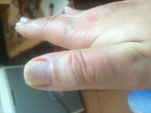 Ноготь начал отходить от ногтевой пластины - фото №1