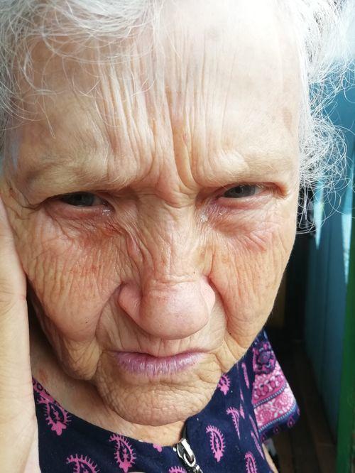 Моей бабушке 81 год, у неё слезный мешочек около глаза забит гноем, сказали удалять хирургическим путем. - фото №1