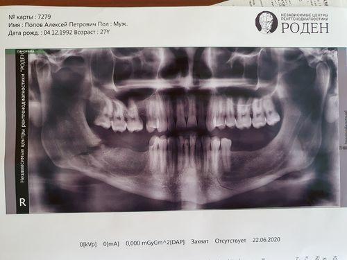 Перелом нижней челюсти - фото №1
