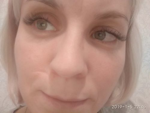 Здравствуйте, мне нужно убрать шрам на лице ,что можно сделать? - фото №1
