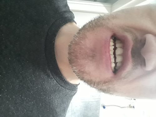 Сколы на зубах из-за скученности - фото №1