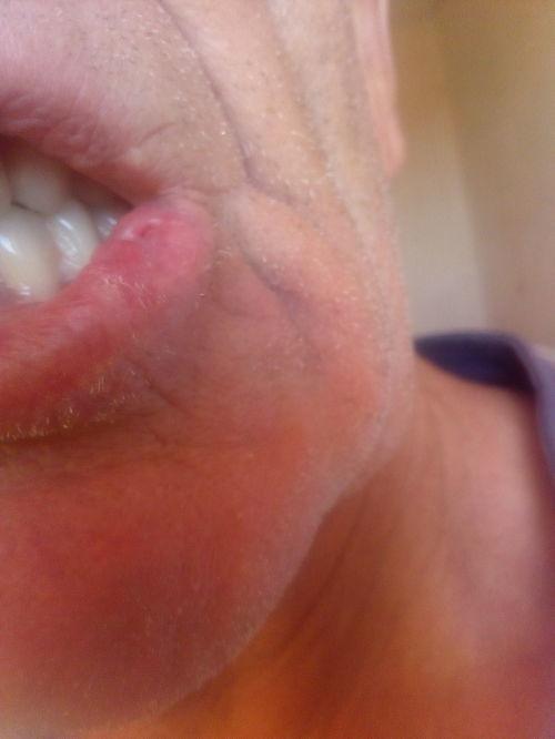 Гиперкератоз нижней губы - фото №3