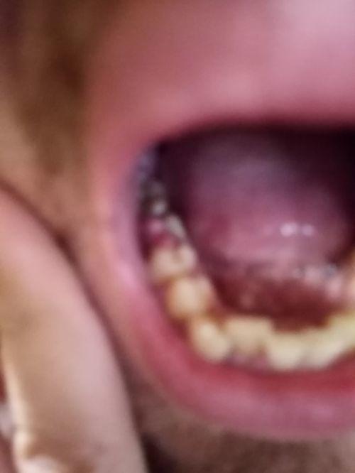 Вырвать зуб - фото №1
