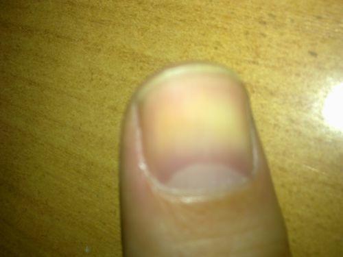 Большие белые пятна на ногтях пальцев рук - фото №1