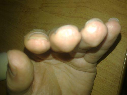 Большие белые пятна на ногтях пальцев рук - фото №7