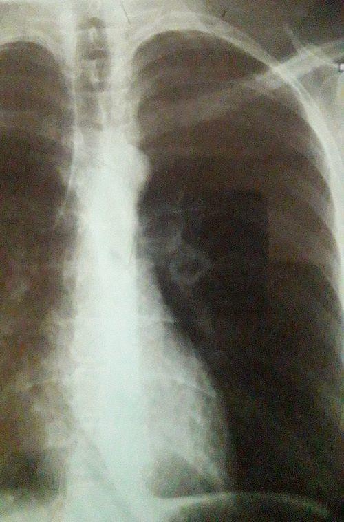 Есть ли наличие туберкулёза по снимку? - фото №1