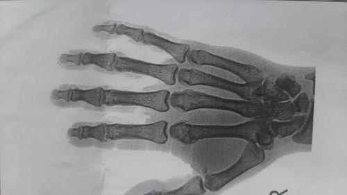 Перелом головки пястной кости указательного пальца со смещением. - фото №2
