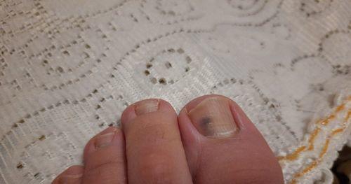 Темное пятно на большом пальце ноги - фото №1