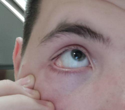 Образование на слизистой глаза - фото №1