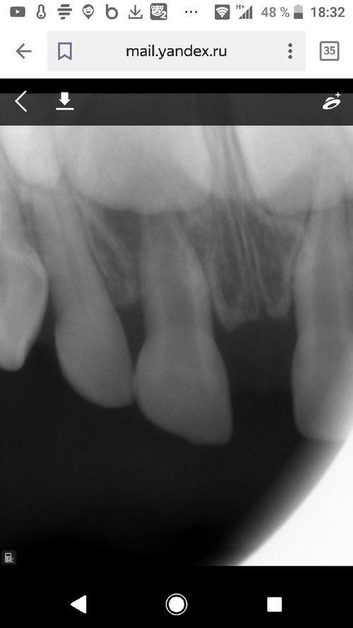 осложнения после лечения переодонтита у ребенка - фото №1