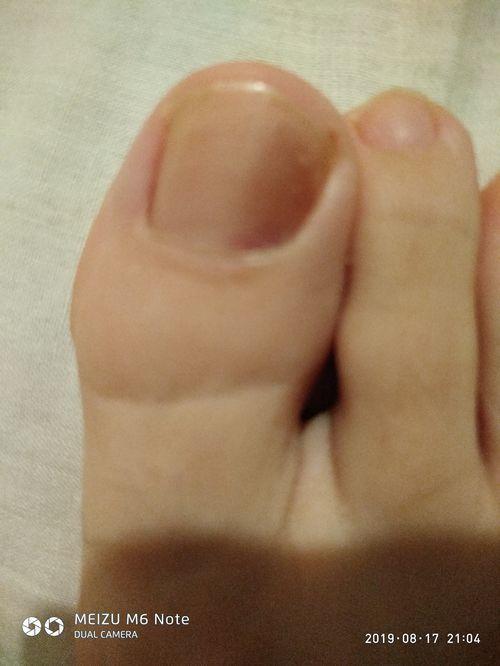 Потемнение ногтя - фото №1