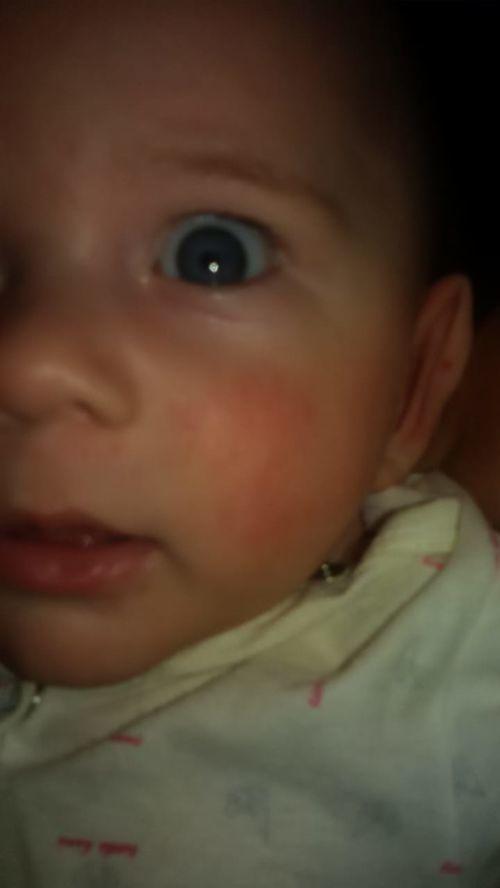 Покраснение,сыпь на щеках у ребенка 5 мес. - фото №1