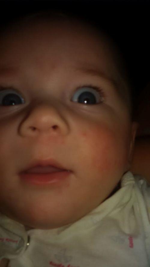 Покраснение,сыпь на щеках у ребенка 5 мес. - фото №2
