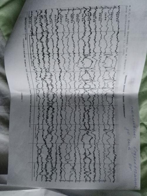 Эпилепсия или нет? - фото №1