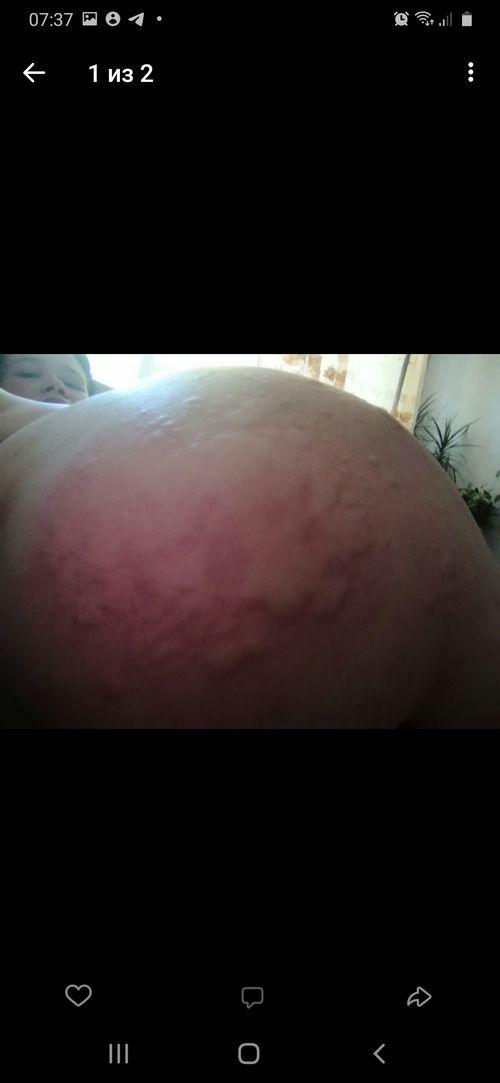 Крапивница при беремености - фото №2