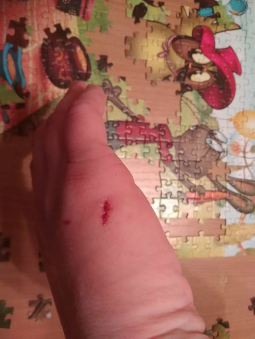 Опасность заражения столбянком после укуса своей собаки - фото №2