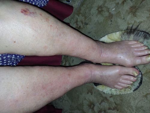болят ноги - фото №1