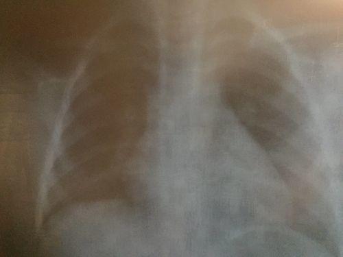 Есть ли у ребенка пневмония - фото №1