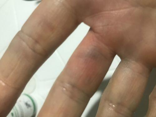 гематомы на ладонях и боковых поверхностях пальцев рук - фото №1