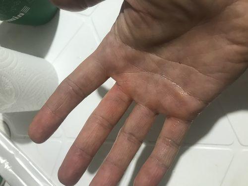 гематомы на ладонях и боковых поверхностях пальцев рук - фото №2