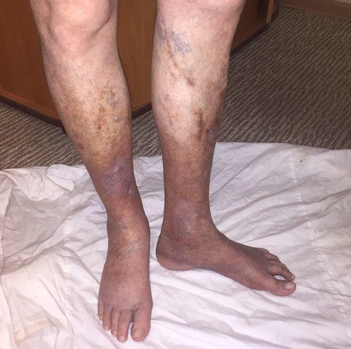 подскажите стадию варикозной болезни нижних конечностей - фото №1