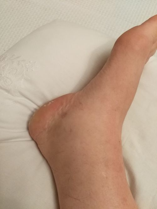 Разрыв связок, вернее надрыв трех связок правый голеностоп, 23 августа. Отекает нога до колена, за ночь проходит, и так уже  1, 5 недели. До этого лежала, на ногу ее наступала. Даже в покое, если нога вниз возникает отек - фото №1